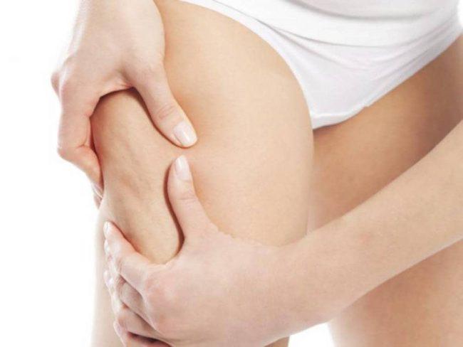 У женщин целлюлит встречается чаще благодаря половым женским гормонам – эстрогенам.