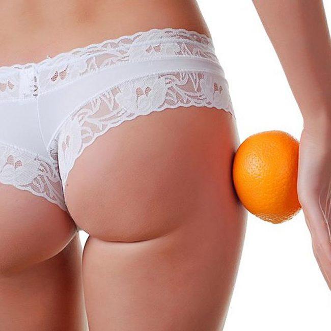 Косметический дефект в виде «апельсиновой корки» возникает практически у всех женщин старше 25 лет.