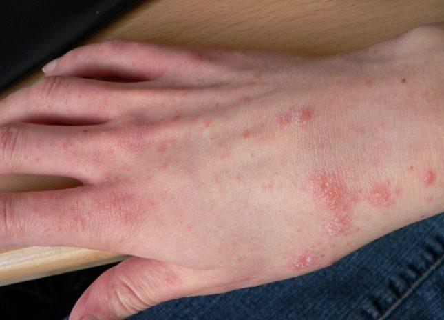 Только лишь по виду высыпаний трудно определить, какое это именно заболевание, поэтому при появлении странной сыпи на теле лучше не затягивать с визитом к врачу