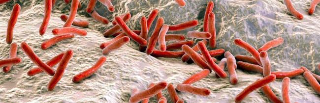 Источником заражения бактерией является зараженный человек