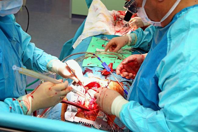 Аортокоронарное шунтирование (АКШ) – это операция, суть которой заключается в создании обходных путей, минуя пораженные атеросклерозом коронарные артерии сердца