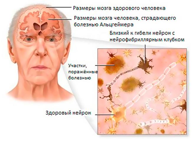 Деменция – одно из тяжелейших видов расстройств работы нервной системы, связанное с органическим поражением мозга