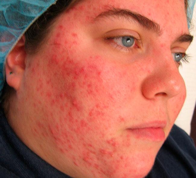 Клещ демодекс может обитать не только в сальных железах на коже лица, но и в железах хрящей век и волосяных фолликулах
