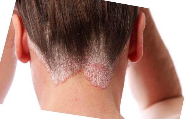 Себорейный дерматит – наиболее сложный вид заболевания кожи, который возникает по причине обострения патогенной микрофлоры, присутствующей в организме человека – сапрофитов