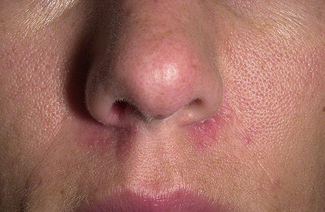 Периоральный дерматит возникает, в большинстве случаев, у людей в возрастной группе 20-35 лет