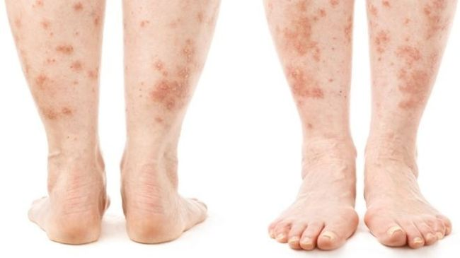 Любой дерматит имеет две стадии развития – острую и хроническую