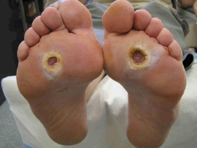 Поражаются нервы, притупляется чувствительность тканей, поэтому человек может слабо ощущать боль от трещин на подошвах, мелких язв на коже стопы