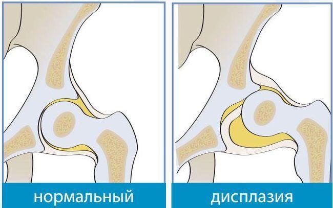 Дисплазия тазобедренных суставов у грудничков