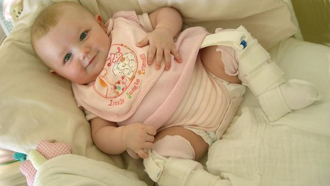 Стремена Павлика - самое популярное и эффективное ортопедическое устройство, которое применяется для лечения дисплазии тазобедренных суставов у детей до года