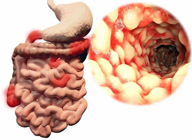 Дивертикулы кишечника – мешотчатые выпячивания стенки толстой, реже тонкой кишки врожденного либо приобретенного характера. Чаще всего встречается бессимптомная форма заболевания