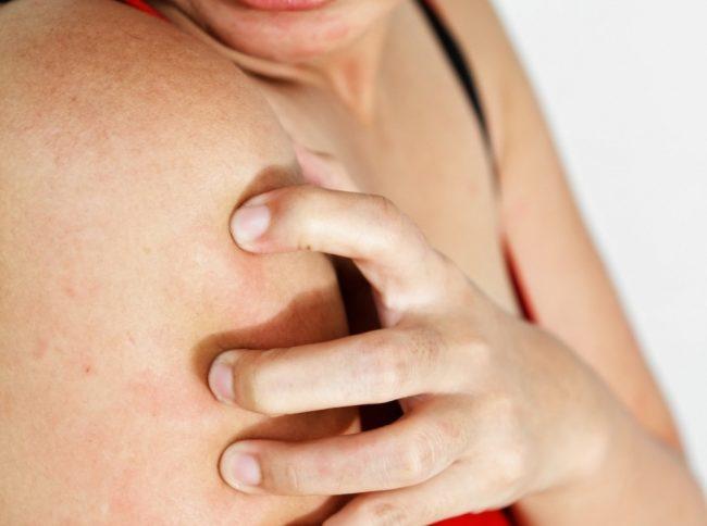 При развитии побочных эффектов на фоне использования крема или геля Долгит необходимо немедленно прекратить лечение. В будущем, при необходимости применения препаратов ибупрофена, необходимо проконсультироваться с врачом