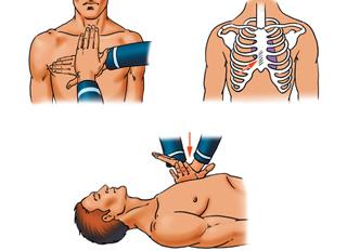 Твои руки при проведении непрямого массажа сердца - это не только сердце, но и легкие пострадавшего