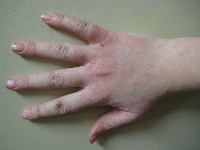 Начальная стадия экземы на руках