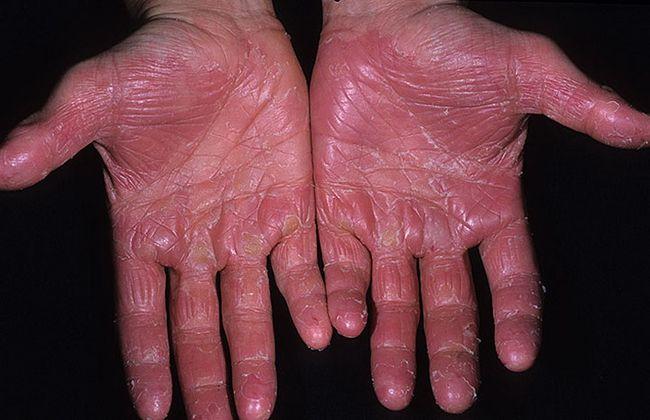 Экзема на руках – это хронический воспалительный процесс верхних слоев эпителия, имеющий нервно-аллергическую природу, что говорит о том, что болезнь не заразна для окружающих людей