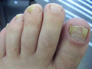 Очень важно перед нанесением лекарственного средства очистить и высушить зараженный участок кожи или ногтя, а также при намазывании захватывать немножко здоровой зоны