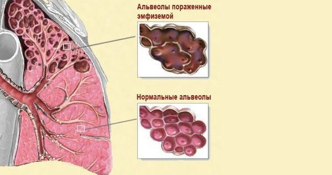 Эмфизема легких встречается всего у 5% пациентов.