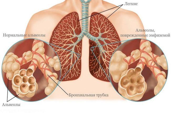 Курение - одна из частых причин возникновения эмфиземы легких.