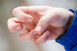 Факторов возникновения эпилепсии у детей достаточно и предугадать что-либо заранее практически невозможно.