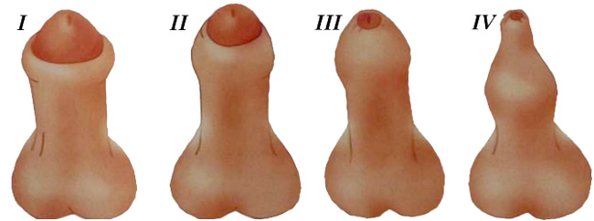 Различают четыре стадии фимоза, от уплотненной сзади головки плоти до невозможности оттяжки крайней плоти