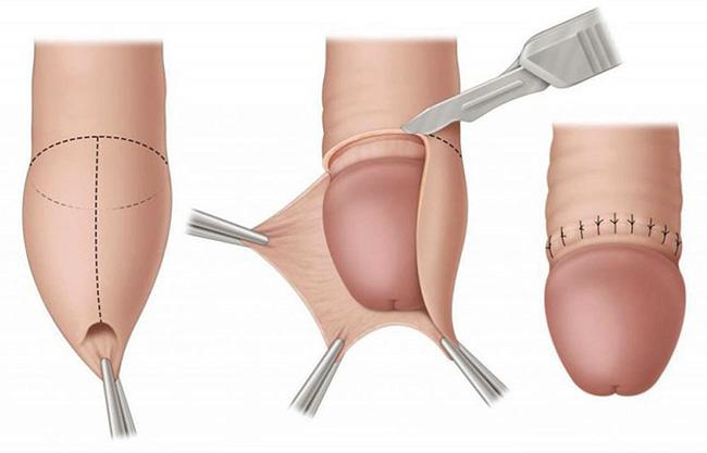 Последовательность выполнения операции по обрезанию