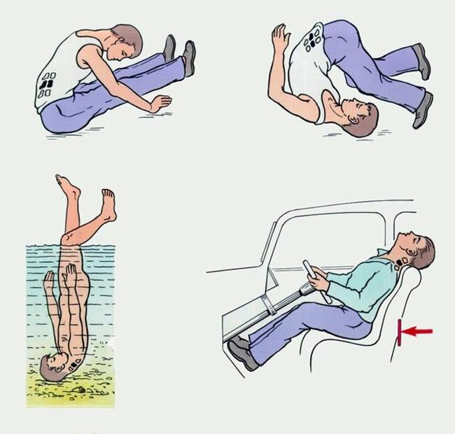 Травма позвоночника может стать причиной развития гемангеомы