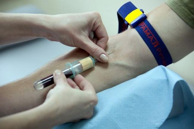 Общий анализ крови - основной метод определения уровня гематокрита