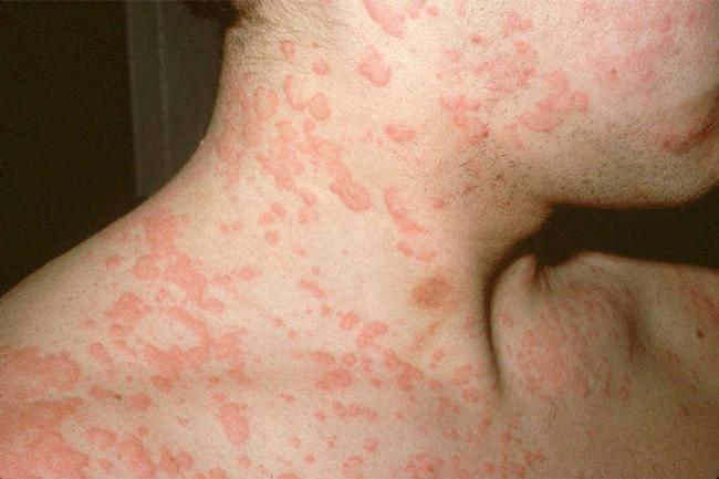 В основном Гевискон хорошо переносится и не вызывает побочных эффектов, иногда препарат может вызвать аллергические реакции в виде сыпи, крапивницы, припухлости