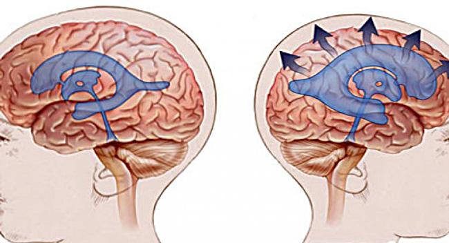 Головной мозг, слева в норме, справа при Гидроцефалии