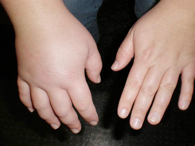 Гипотиазид применяется для ликвидации отеков при застойной сердечной недостаточности, циррозе печени с асцитом, предменструальном синдроме