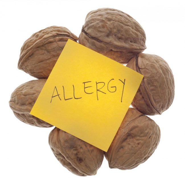Аллергическая реакция может появиться на любой химический компонент грецкого ореха. Проявления симптомов аллергии индивидуальны. Если вы ощутили недомогание после употребления грецких орехов, то прекратите их есть, примите антигистаминный препарат и обратитесь к аллергологу
