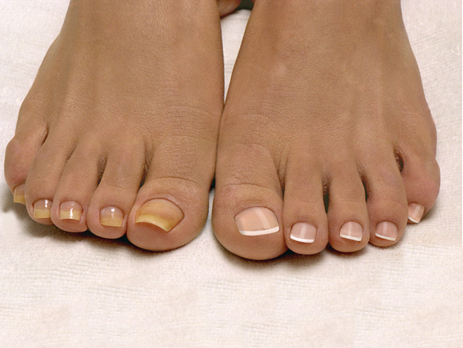 Ногти при грибке теряют привлекательный внешний вид, что приводит к переживаниям, стеснительности и замкнутости