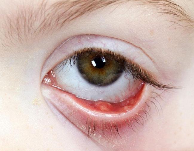 Халязионом век называют образование в виде опухоли, которое часто путают с ячменем из-за схожих визуальных признаков