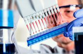 О чем расскажет ИФА-анализ? Описание теста и расшифровка результатов