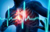 Инфаркт миокарда — первые признаки и неотложная помощь