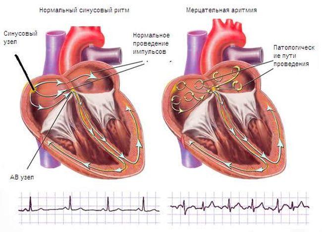 Нормальный ритм сердца и мерцательная аритмия