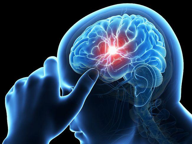 В результате инсульта кровообращение мозга резко нарушается, что ведет к гибели и отмиранию нервных клеток
