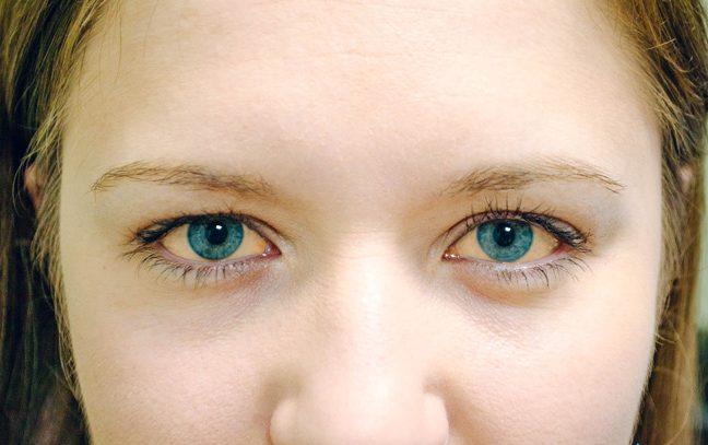 При нарушении правил приема Йодомарина, возможна передозировка, которая проявляется в виде болей в животе, диареи, рефлекторной рвоты, окрашивания слизистых глаз в коричневый оттенок