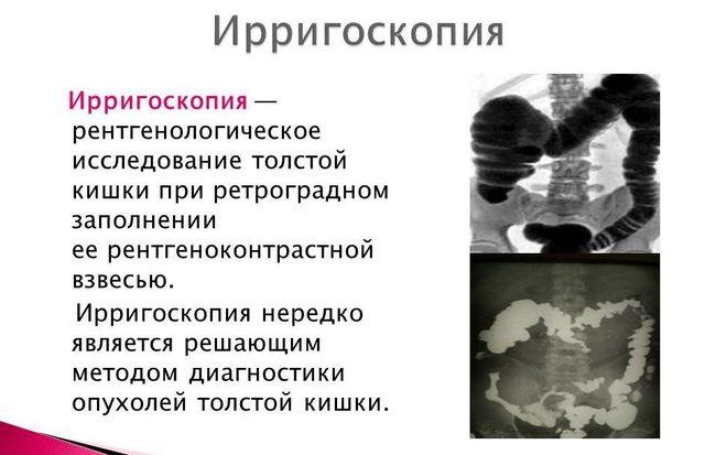 Ирригоскопия кишечника - одна из самых простых, безболезненных и популярных обследований толстой кишки.