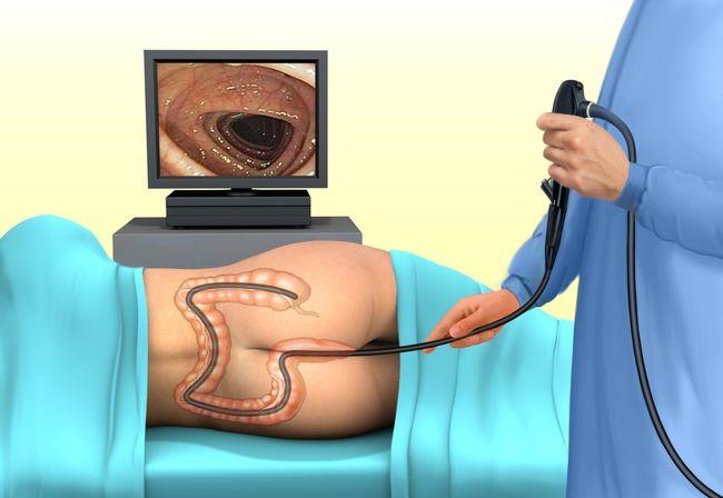 Процедура ирригоскопия кишечника.
