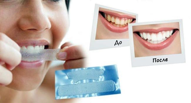 Слишком частое использование полосок для отбеливания, может стать причиной нарушения чувствительности зубов