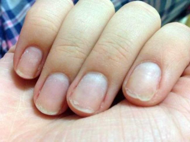 На состояние ногтей влияет множество факторов: неправильный уход, применение лака низкого качества, влажный или сухой воздух в помещении, привычка обкусывать зубами ногти