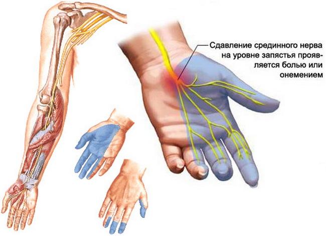 Если немеет левая рука, проблема может крыться в позвоночнике, с каждым днем все дальше усугубляясь