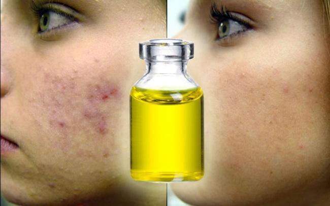 Касторовое масло используют для лечения акне. Перед нанесением масла, кожу распаривают, чтобы открылись поры, затем с помощью тампона наносят масло на все лицо уделяя особое внимание проблемным зонам