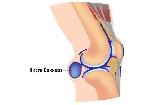Киста Беккера под коленом - это патология, причиняющая большой дискомфорт