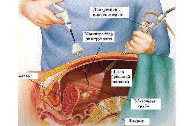 Как именно необходимо лечить кисту яичника может определить только специалист