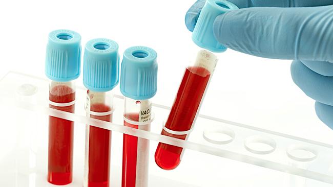 АЧТВ - активированное частичное тромбопластиновое время, предоставляет данные об эффективности деятельности плазменных факторов, норма составляет 22,5-35,5 секунд