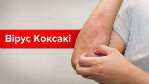 Вирус Коксаки - это нашумевший в 2017 году тип энтеровирусов. Что нужно знать о нем и как следует лечить болезнь, вы узнаете в этой статье