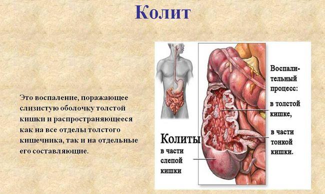 Симптомы колита кишечника могут отличаться в зависимости от того, в острой или хронической стадии находится болезнь
