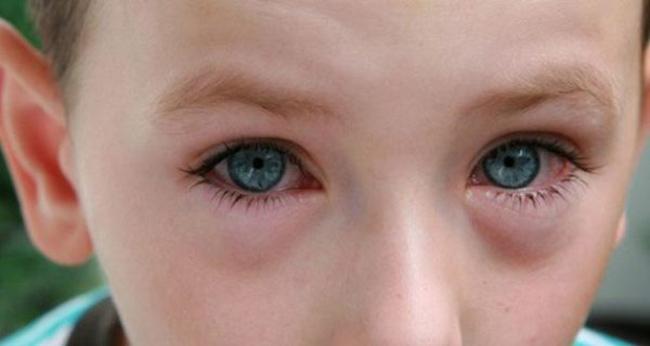 При вирусном или бактериальном заболевании необходимо промывать глаза Фурацилином