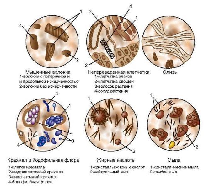 Микроскопическое исследование позволяет определить наличие в фекалиях различных примесей